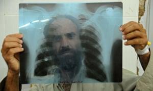 MDG Tuberculosis in Peshawar