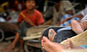 MDG : Leprosy in Bangladesh, Dhaka