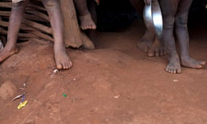 Malnutrition in Haiti