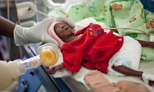 MDG : Premature birth : premature baby in the Special Care Baby Unit , Kampala, Uganda