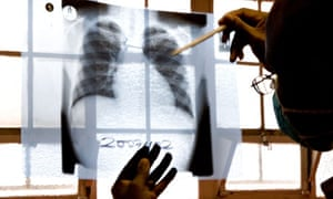 MDG : TB in South Africa : doctor examines chest X-rays at a tuberculosis clinic, Cape Town