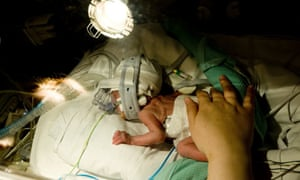A premature baby in the Royal London Hospital neonatal unit