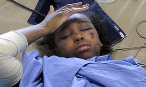 Bahia Bakari, who survived the Yemenia airliner crash off the Comoros islands