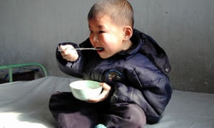 A Malnourished North Korean Boy