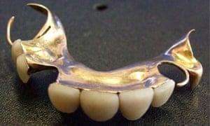 Churchill teeth auction