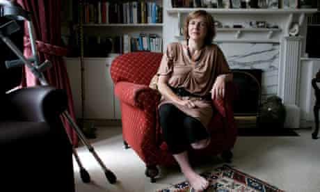 Sue Eckstein who had her leg amputated