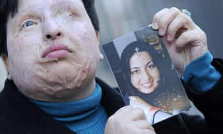 Ameneh Bahrami holds a photo showing herself before she was blinded with acid by Majid Movahedi.