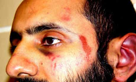 Babar Ahmad court case