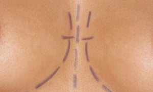 Breasts marked for plastic surgery