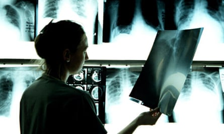 Woman looking at an x-ray