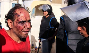 An injured protester who has been detained, is pictured in front of the presidential palace in Cairo