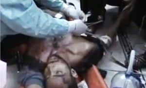A doctor treats a wounded man in Homs