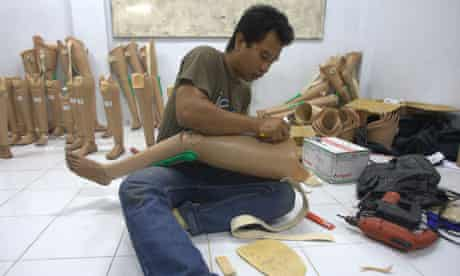 Prostheses in Banda Aceh