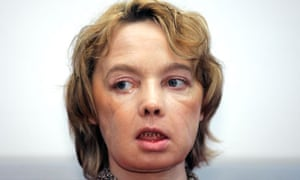 Isabelle Dinoire, face transplant patient