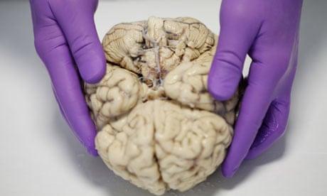 Human brain essay