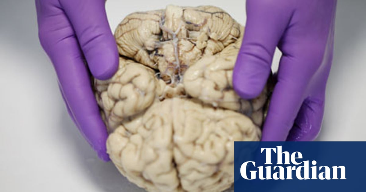 Dissecting brains is pretty intense' | Science | The Guardian