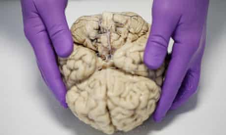 Steve Gentleman prepares to dissect a human brain.
