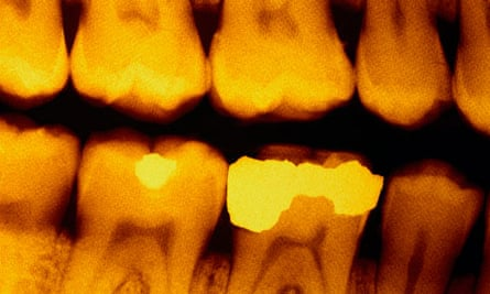 Dental x-ray trial