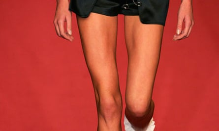 Skinny model at Madrid fashion week