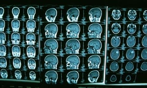 CT scans should be clinically justified, says the study.