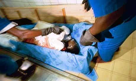 HIV/Aids victim at Kigali morgue