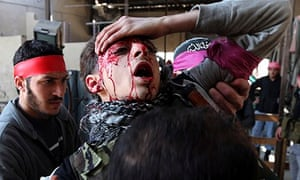 Free Syrian Army fighter holds his head, blood streaming down face