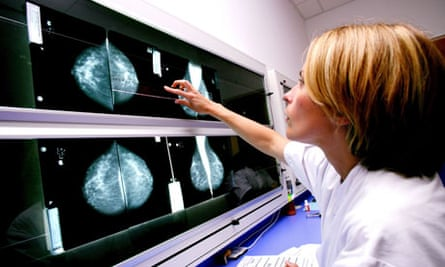 radiologist examines mammograms on a lightbox
