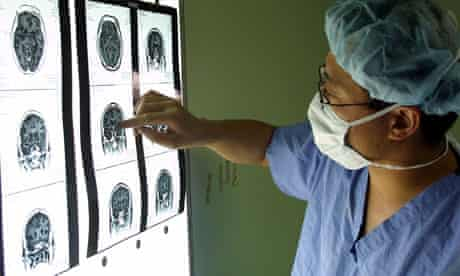 heroin addict brain scans
