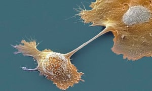 Pancreatic cancer cells. Despite attempts to improve the NHS record on treatment of the cancer, suff