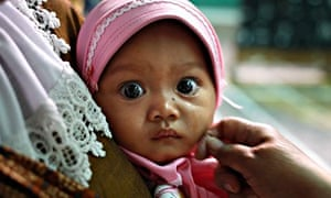 Face of circumcised baby, Indonesia