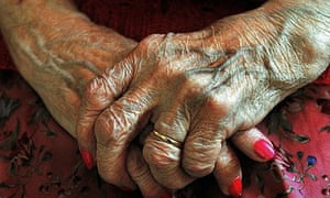 An old woman's hands. Andrew Lansley argues: Age is the principal determinant of health need
