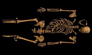 King Richard III's remains, found under a Leicester car park with fractured skull and deformed spine
