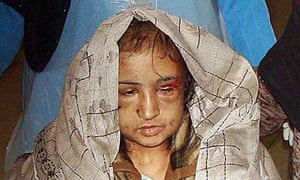 Afghan wife Sahar Gul being taken to hospital. Her in-laws tried her to force her into prostitution