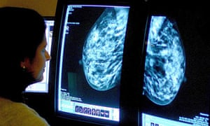 Breast cancer spread test. A consultant analysing a mammogram.