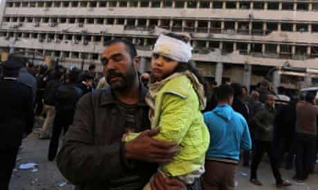 A child injured in the suicide car bombing of Cairo police headquarters by Ansar Beyt al-Maqdis