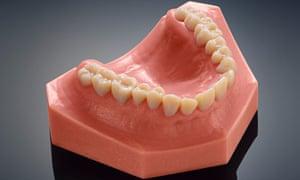 3D-printed teeth