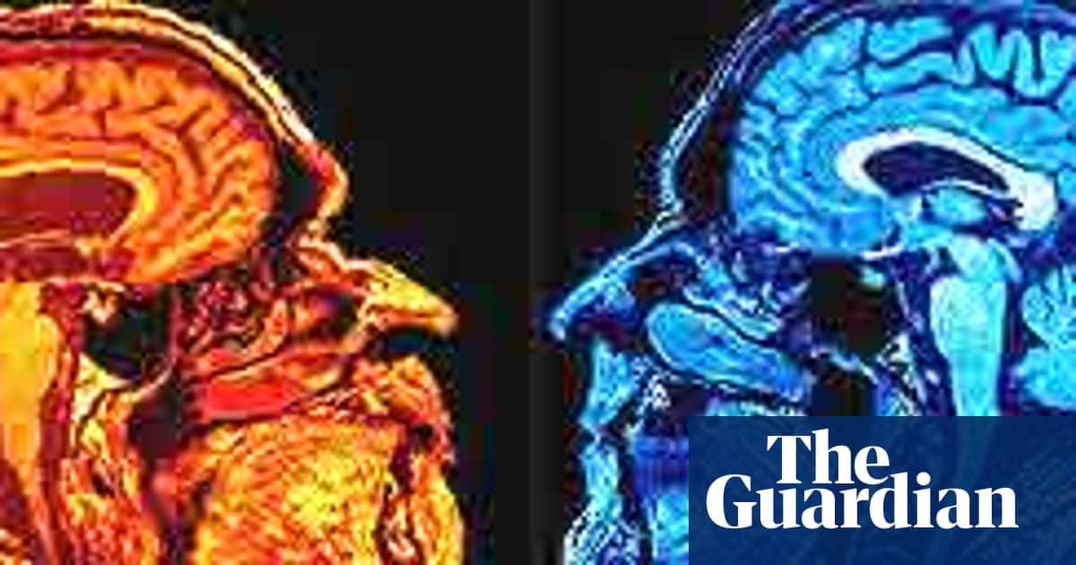 Scans Show Possible Link Between Brain >> Brain Scans Show Art And Science In True Colours Uk News The