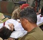 Pakistan doctors assist Malala Yousafzai