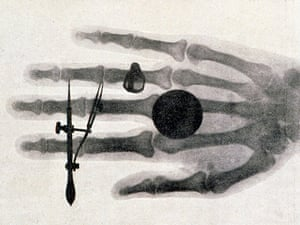 Wilhelm Roentgen's x-ray photograph of his wife's hand in 1896