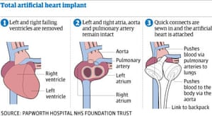 Graphic: artificial heart