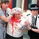 A victim of the IRA's 1996 bomb in Manchester