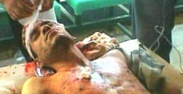 A TV image of a wounded Iraqi man in a hospital in Kufa after a mortar attack killed 27 people