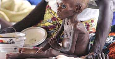 A child suffering from severe malnutrition is treated in Maradi, Niger