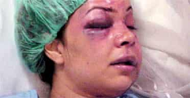 Saudi news reader Rania al-Baz in hospital after the beating from her husband
