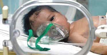 A Palestinian baby lies in an incubator in a kindergarten at Shifa hospital in Gaza