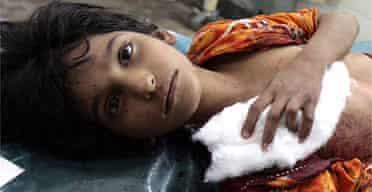 A Shia Muslim girl holds her wound as she waits for treatment at Baghdad's Yarmouk hospital. Photograph: Ahmad Al-Rubaye/AFP/Getty