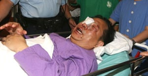Hong Kong pro-democracy politician Albert Ho is admitted to hospital after he was attacked by three unidentified men