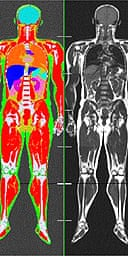 Ben Schwartz's scan