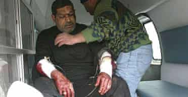 A Shia pilgrim is taken to hospital in Baghdad after he was wounded in a bomb attack