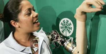Claudia Mitchell demonstrates the functionality of her bionic arm